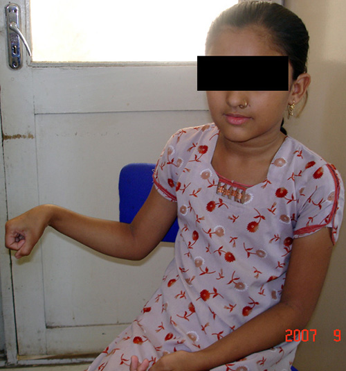 child knee surgery in Ahmedabad